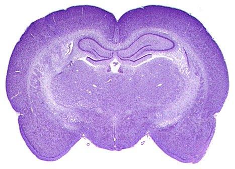 Hippocampus Of The Rat Synapseweb